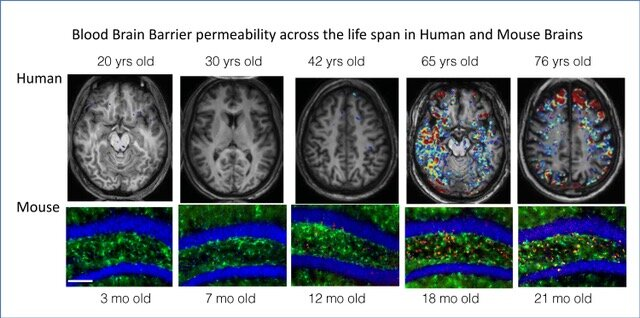 Drugs that quell brain inflammation reverse dementia – Medical Xpress