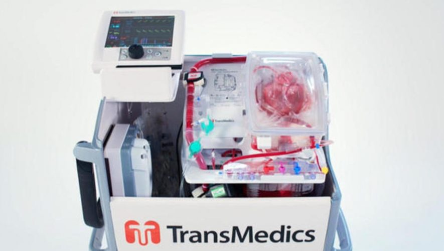 Heart in a Box: Device used to revive heart for transplant will increase donor pool, doctors say – CBS News