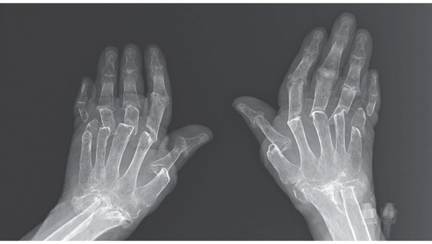 Woman's arthritis causes bones to dissolve in case of 'telescoping fingers,' report finds – Fox News